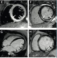 心肌病超声诊断系列8.7:扩张型心肌病诊断注意事项